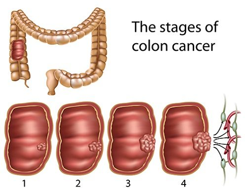 Colon Cancer Stages Types And Treatments Of The Disease