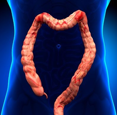 Ulcerative Colitis A Disorder That Should Be Monitored