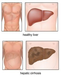 cirrhosis of the liver digestive care physicians