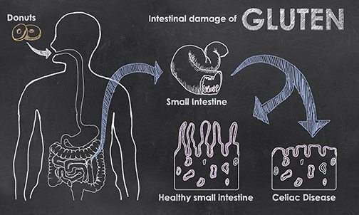 Could You Be Gluten Intolerant?