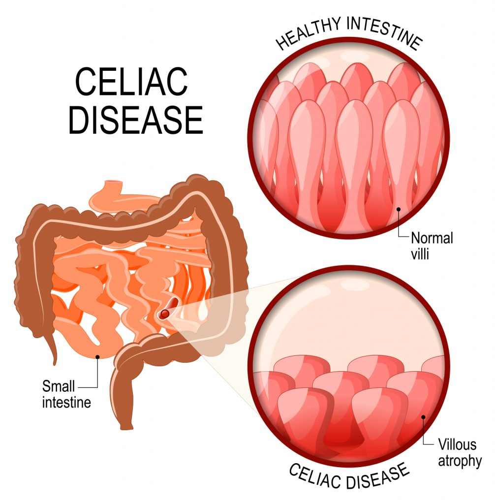 medical illustration of celiac disease | Digestive Care Physicians