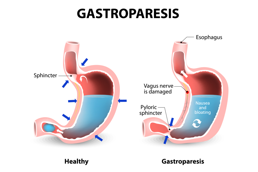 August is Gastroparesis Awareness Month