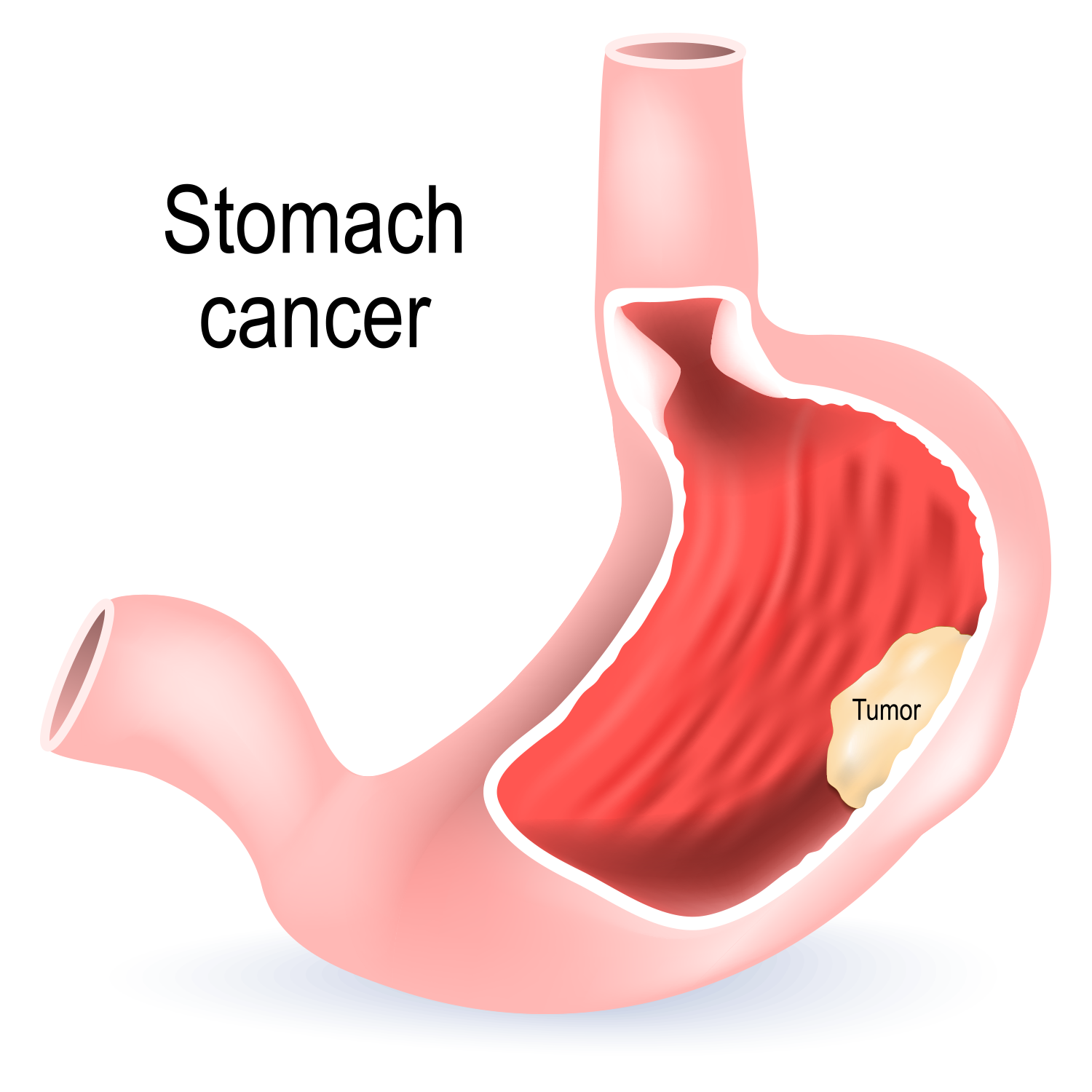 stomach cancer | illustration showing stomach with a tumor