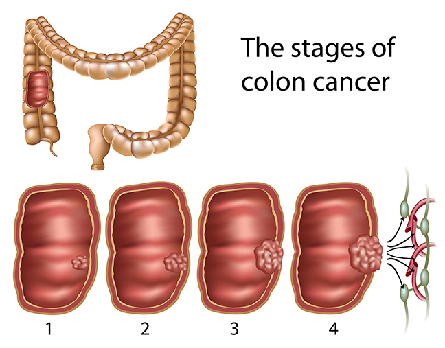 medical illustrationshowing the stages of colon cancer